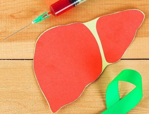 """Steatoza hepatică – Tot ce trebuie să știi despre """"ficat gras"""""""